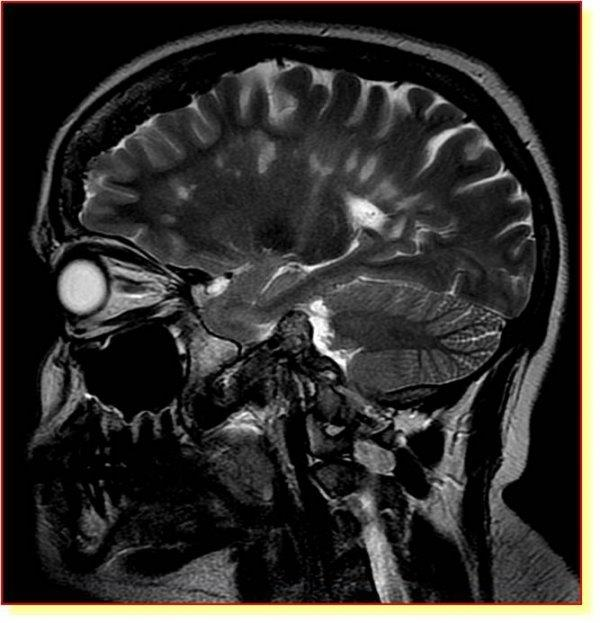 Tumori del Sistema nervoso centrale: la task force dell'Azienda Ospedaliero-Universitaria di Modena