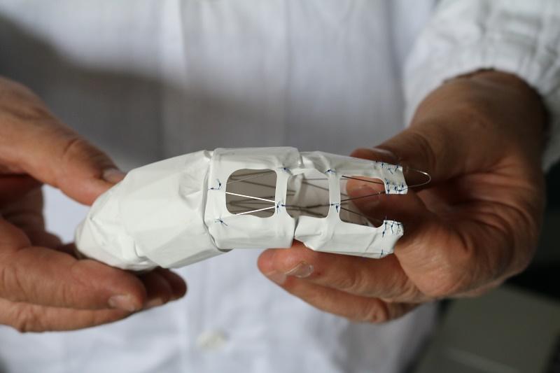 Lesione aorta: un intervento salvavita all'Ospedale di Baggiovara